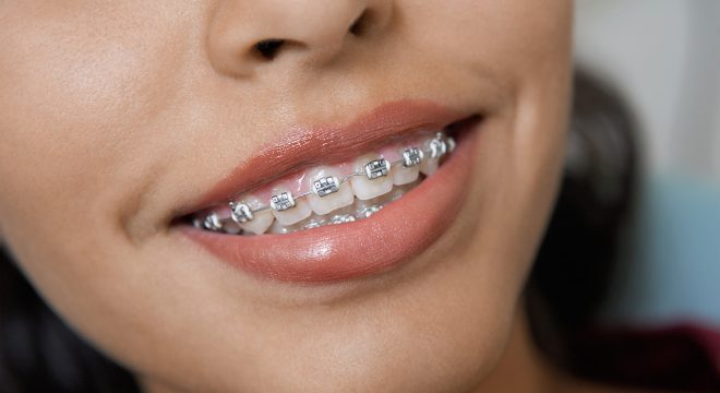 dental teeth braces