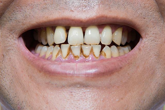 yellow teeth stain