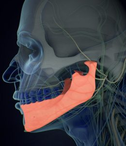jaw pain after jaw reduction surgery