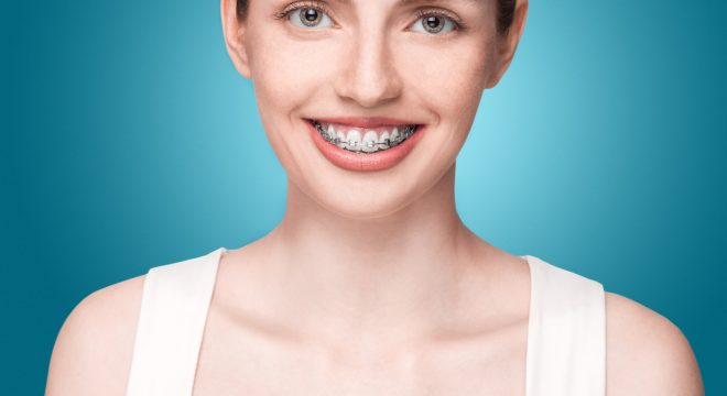 Importance Of Teeth Straightening For Adults