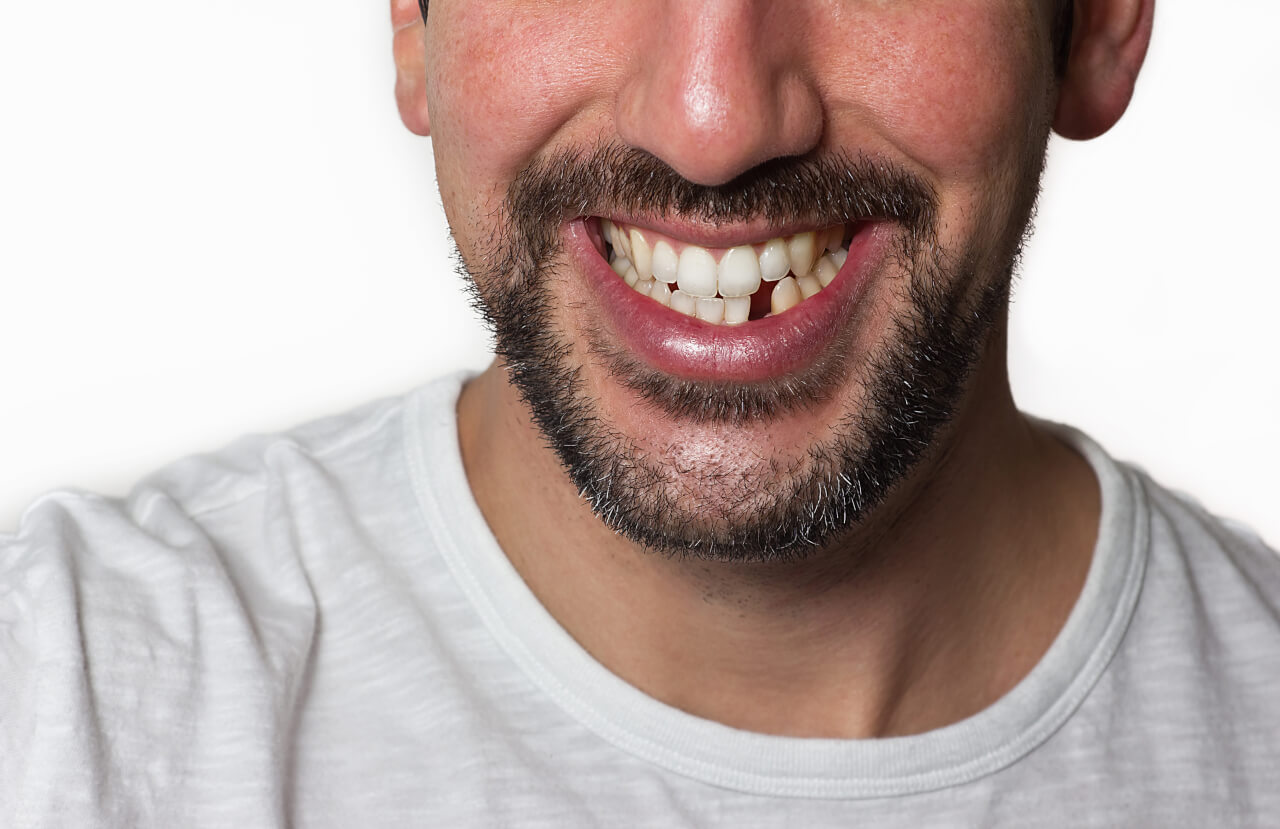 What To Do When You Have Missing Teeth