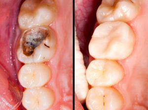 amalgam vs composite fillings