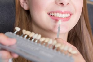 teeth bonding vs veneers