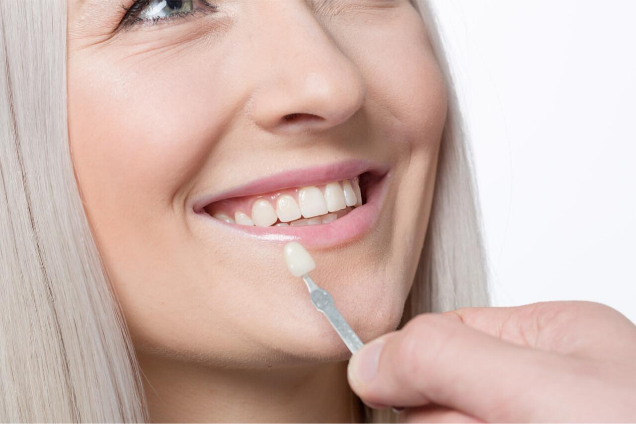 teeth bonding vs veneers