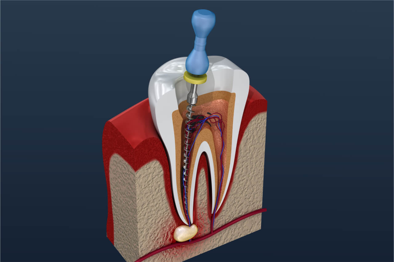 how do you know if you need a root canal
