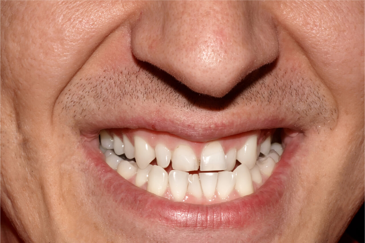 curious about What Causes Crooked Teeth