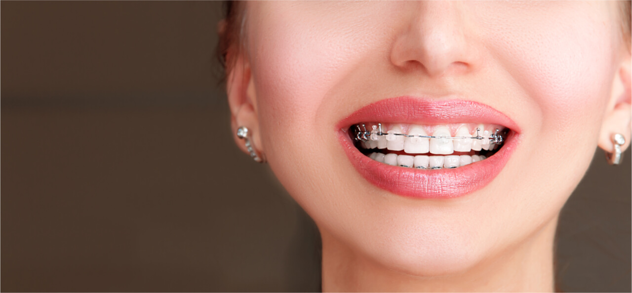 types of braces for teeth