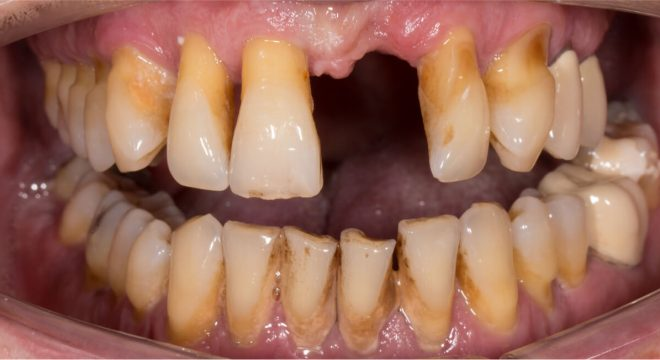 Necrotizing Periodontal Disease
