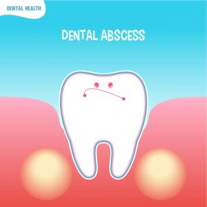 can an abscessed tooth be pulled