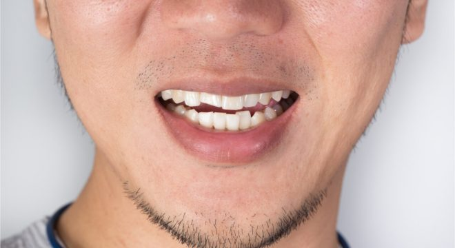 how to fix a cracked tooth at home