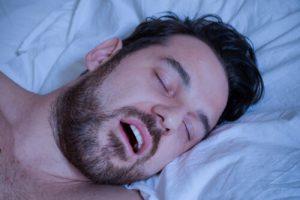 mandibular advancement splint for snorer