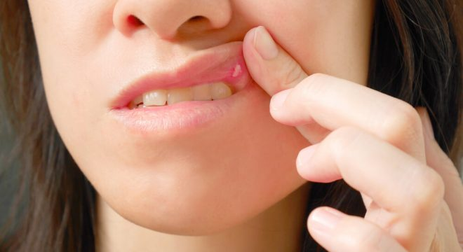 canker sore prevention