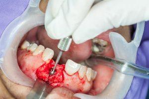 bone graft dental