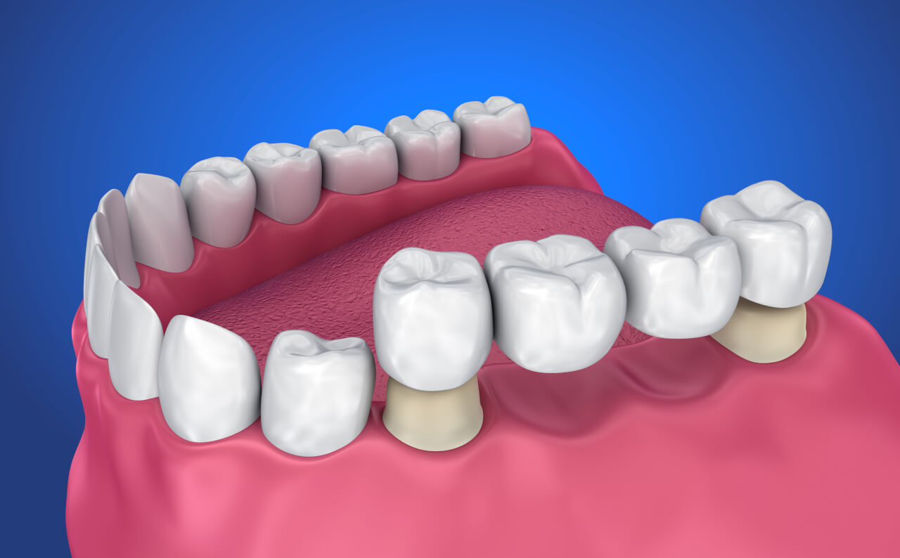 dental bridge procedures