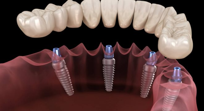 The Average Cost Of All On 4 Dental Implants
