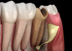dead tooth symptoms