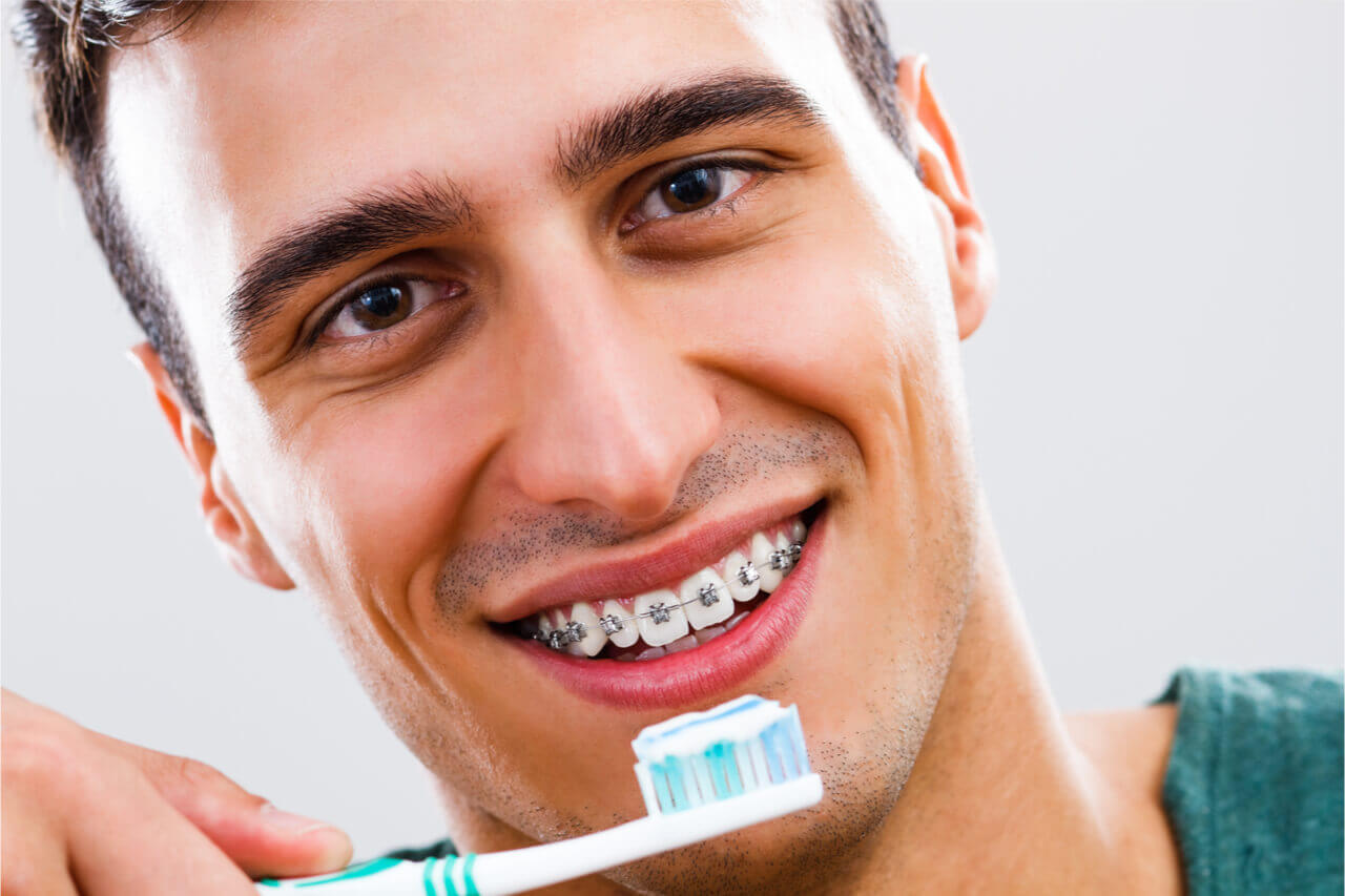 5 Improvements Of Your Teeth After Braces