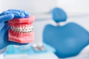 Teeth After Braces