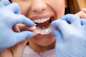 Teeth After Braces Recovery After Orthodontics